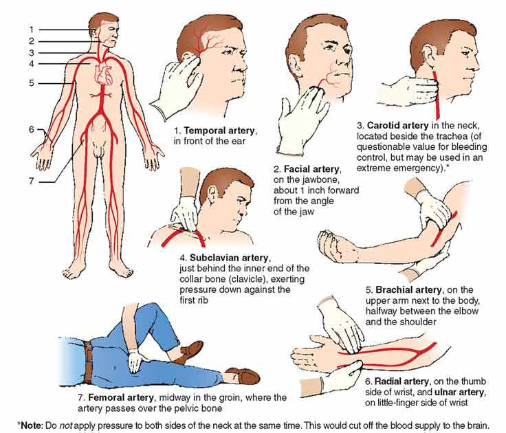 pressure points to make you pass out