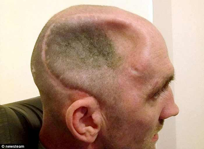 dent in head skull back & top-causes and how tofix
