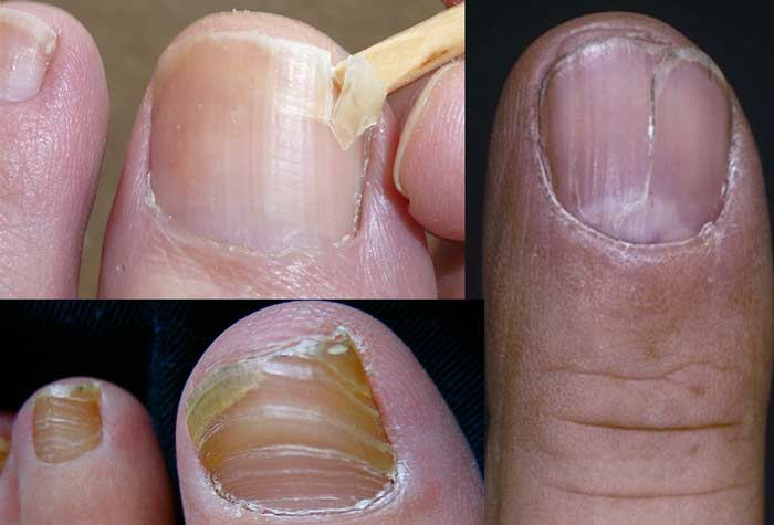 Causes Horizontal Vertical At Nail Bed Splitting
