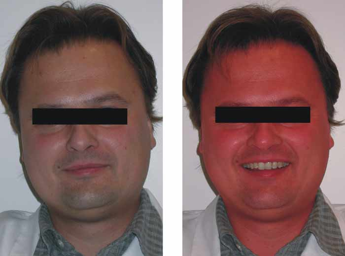 Niacin flush before and after picture