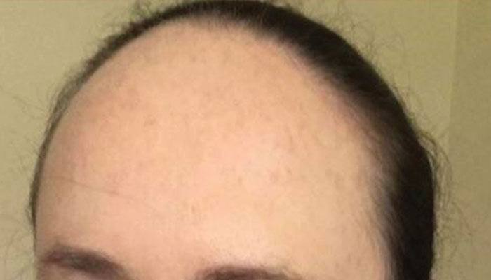 receding hairline women, men, stages, haircuts prevention