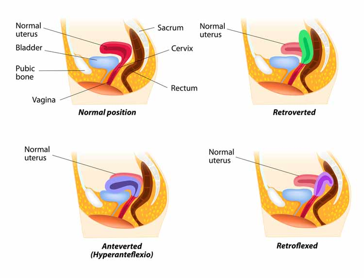 tilted anteverted Retroverted retroflexion Uterus pictures