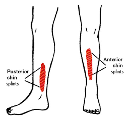 shin splints anterior and posterior